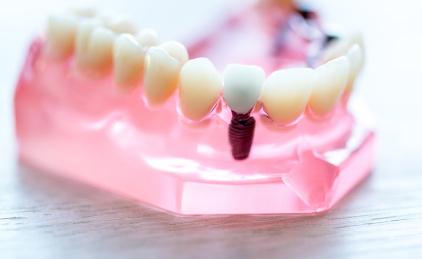 Guter Zahnersatz erhöht die Lebensqualität